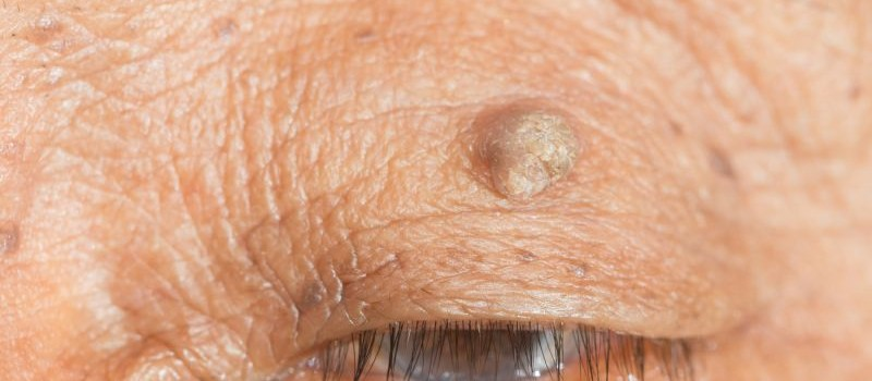 close up of skin tag of left upper eyelid.