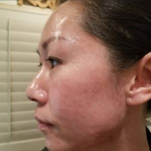 Acne blemished free